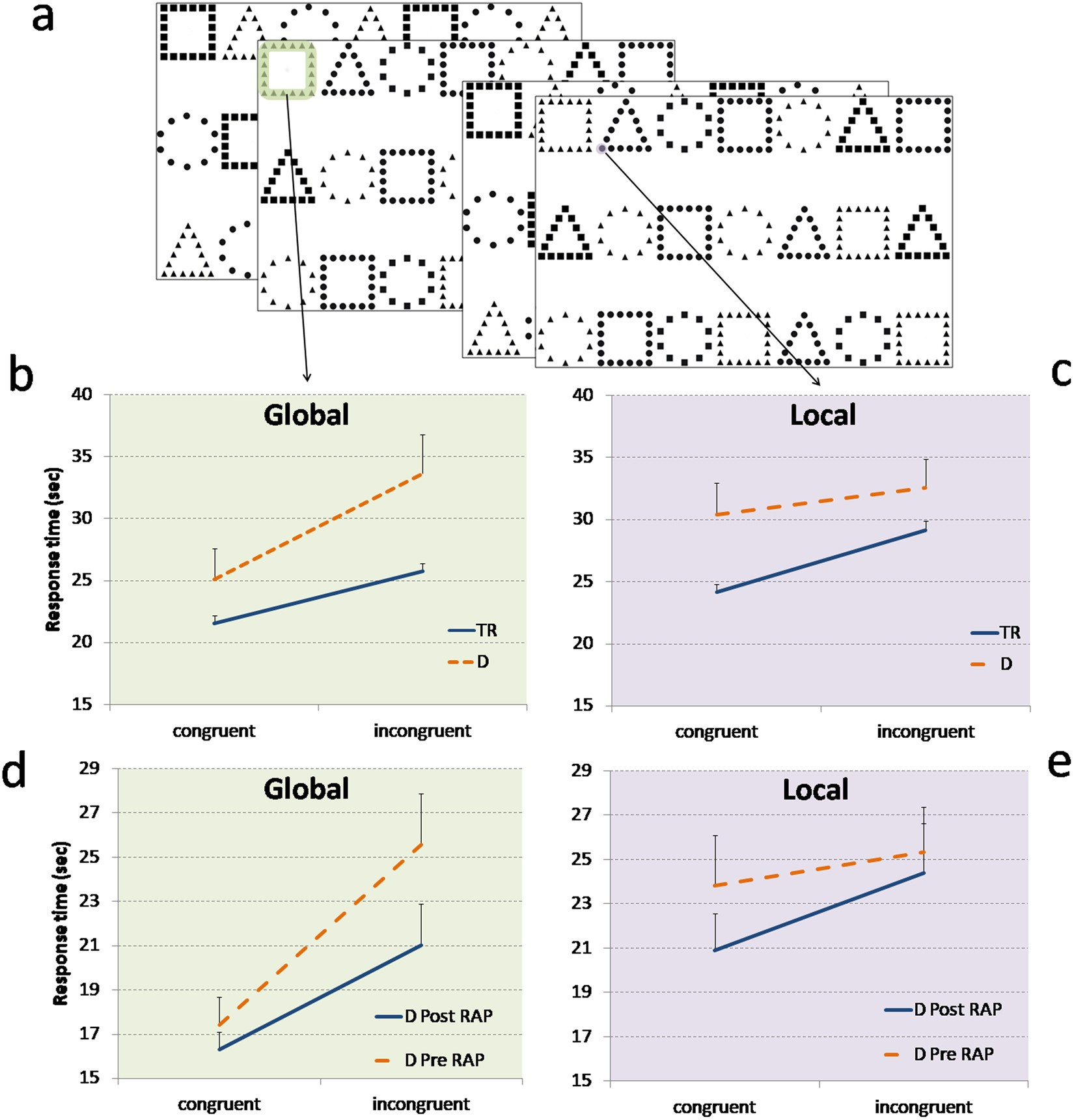 Predicting Dyslexia Even Before >> A Different Vision Of Dyslexia Local Precedence On Global