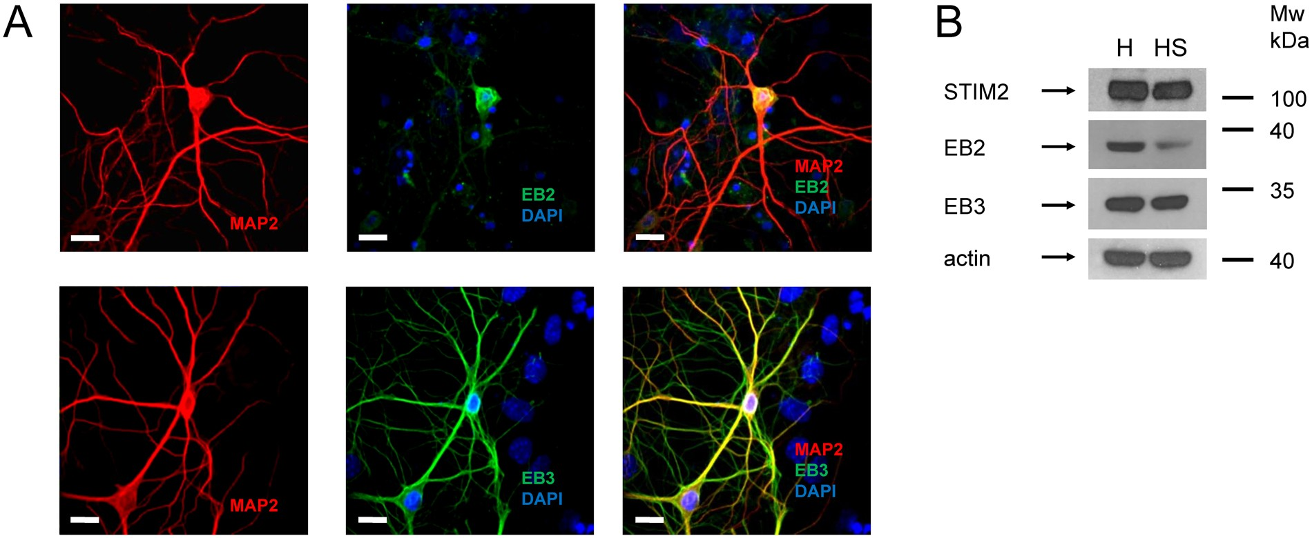 Stim2-Eb3 Association and Morphology of Dendritic Spines in