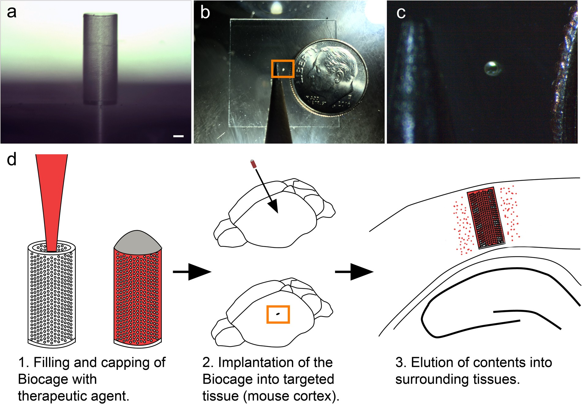 An Implantable Micro-Caged Device for Direct Local Delivery
