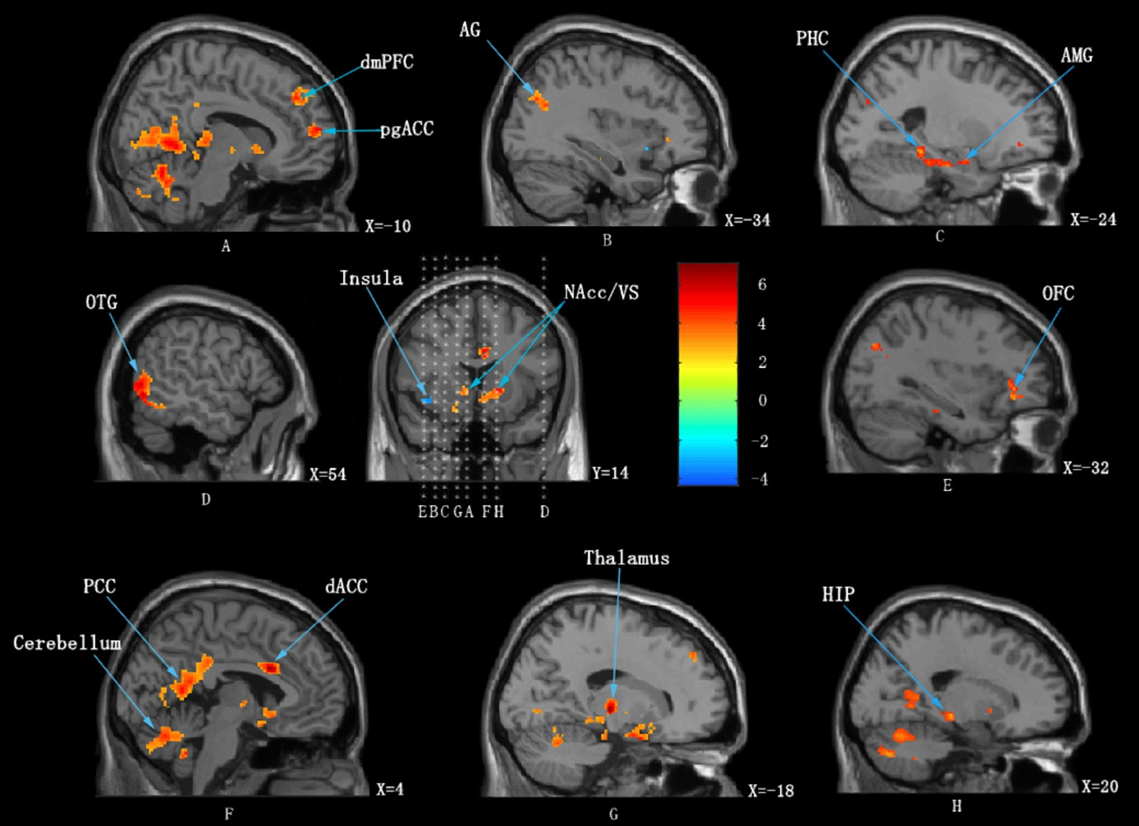 The neural correlates of the unified percept of alcohol-related