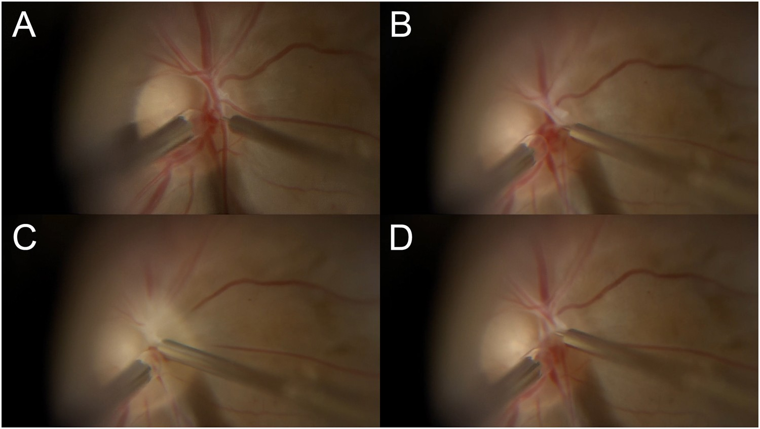 Intra-retinal Arterial Cannulation using a Microneedle for