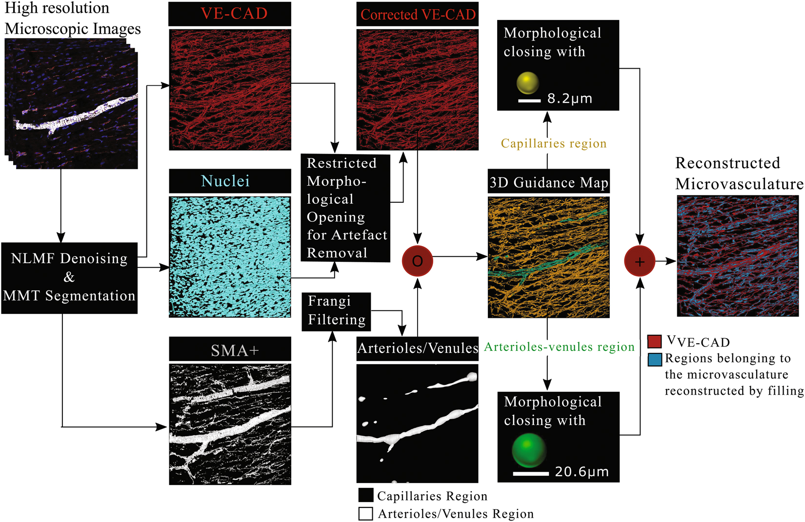 Deciphering microvascular changes after myocardial infarction