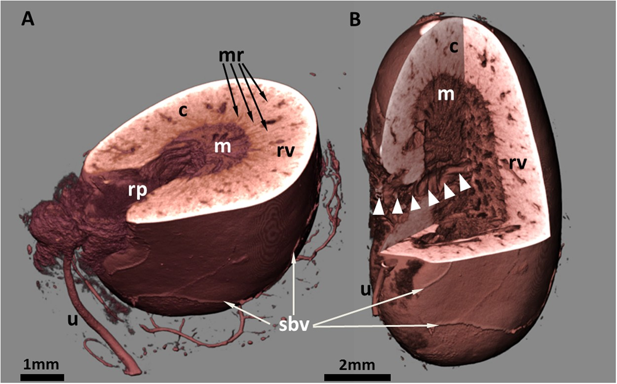 3d Virtual Histology Of Murine Kidneys High Resolution