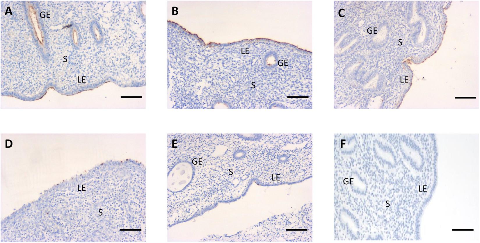 Noyes dating endometrium