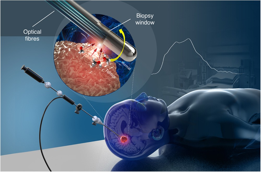 Risultati immagini per Imaging needle: Researchers have shown that it is useful to reduce the risk during brain biopsy