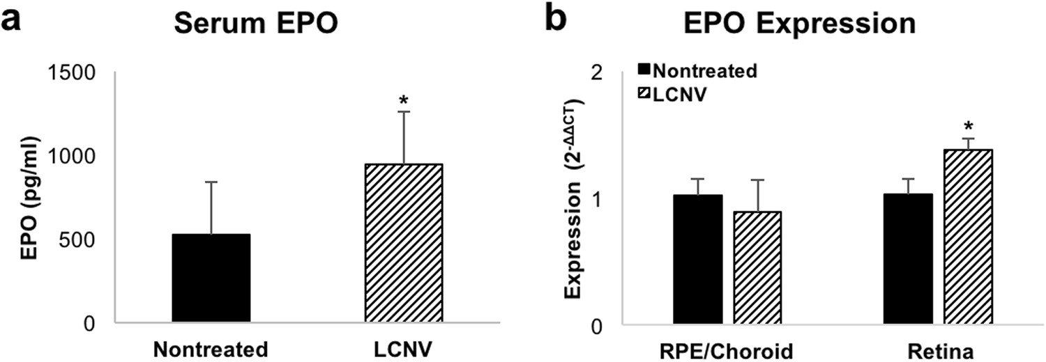Erythropoietin Signaling Increases Choroidal Macrophages and ...