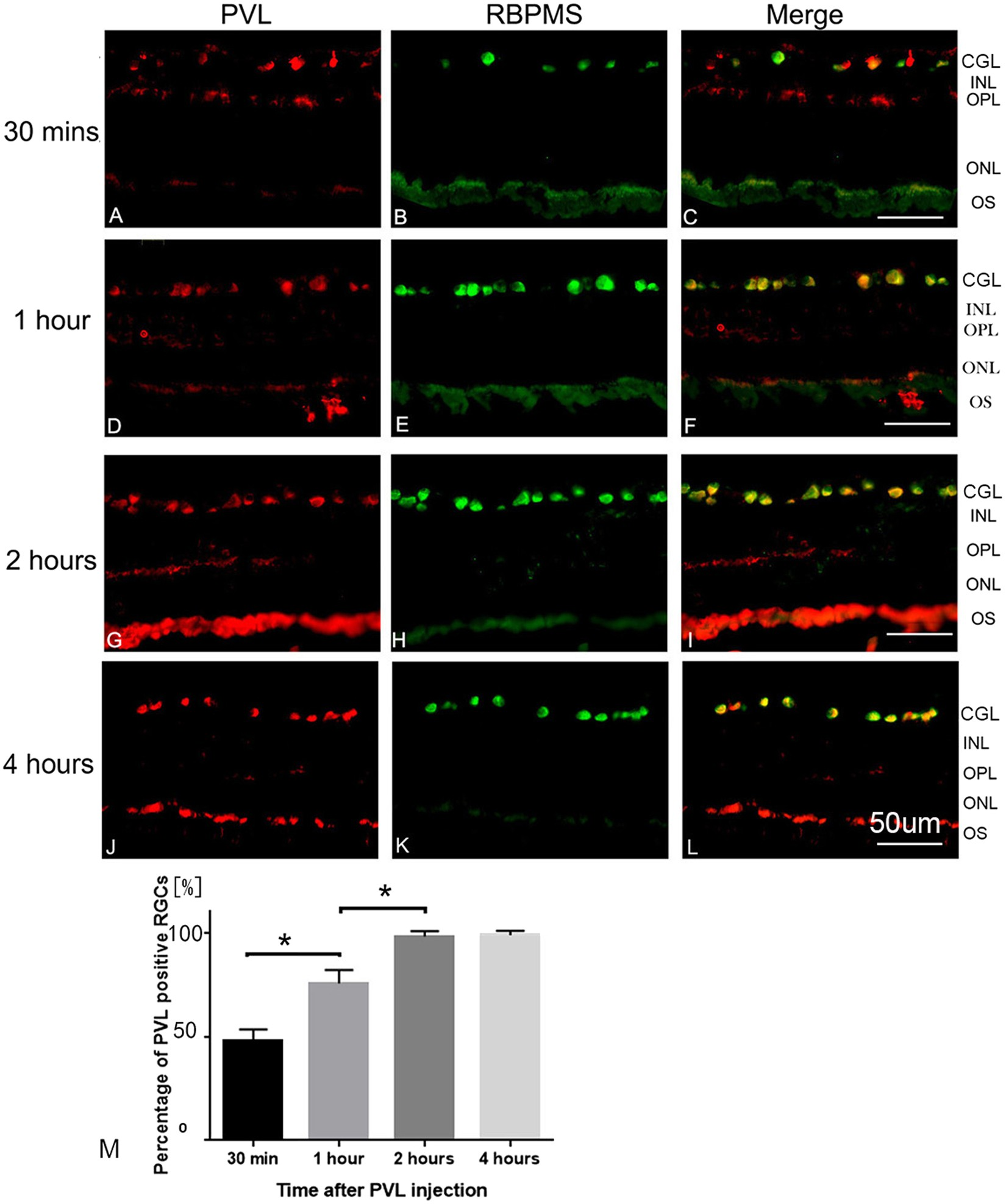 Panton–Valentine Leukocidin Colocalizes with Retinal Ganglion and Amacrine  Cells and Activates Glial Reactions and Microglial Apoptosis | Scientific  Reports