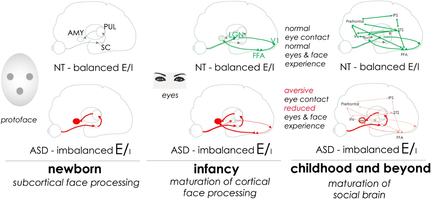 Where Autism Got Right Treatment In 2015 >> Bumetanide For Autism More Eye Contact Less Amygdala Activation