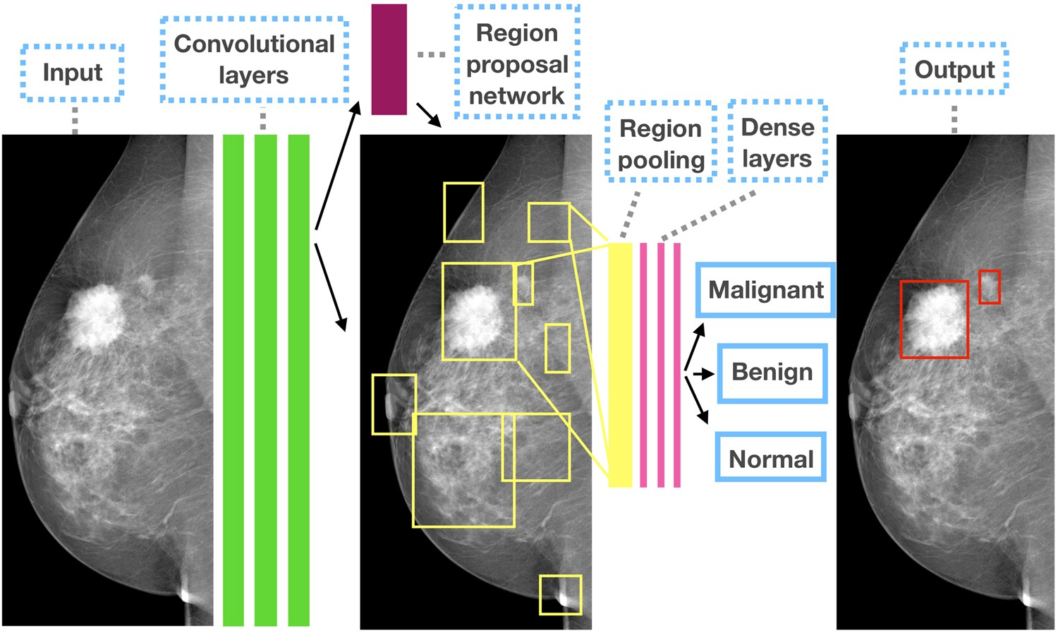 Detecting and classifying lesions in mammograms with Deep