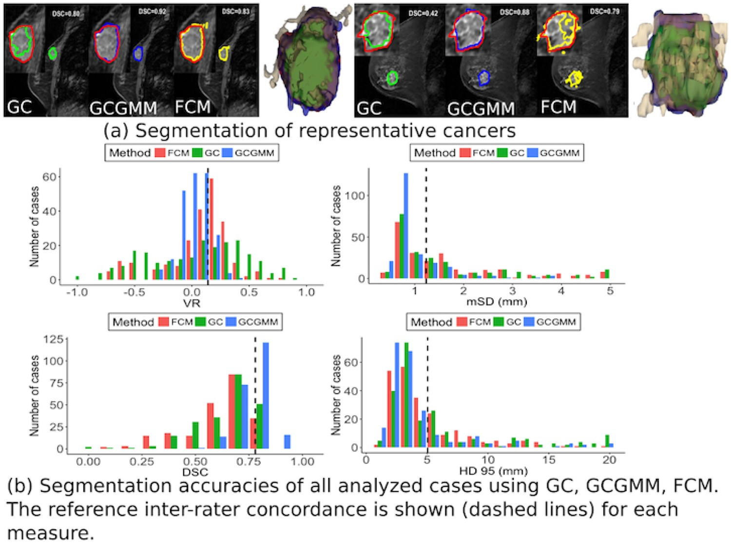 Appearance Constrained Semi-Automatic Segmentation from DCE-MRI is