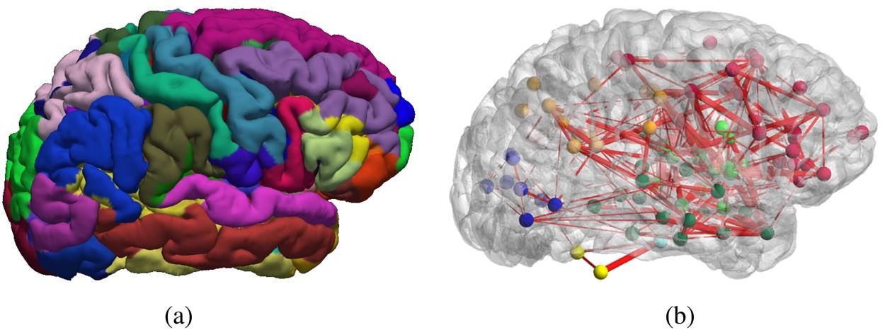 Function Specific And Enhanced Brain Structural Connectivity