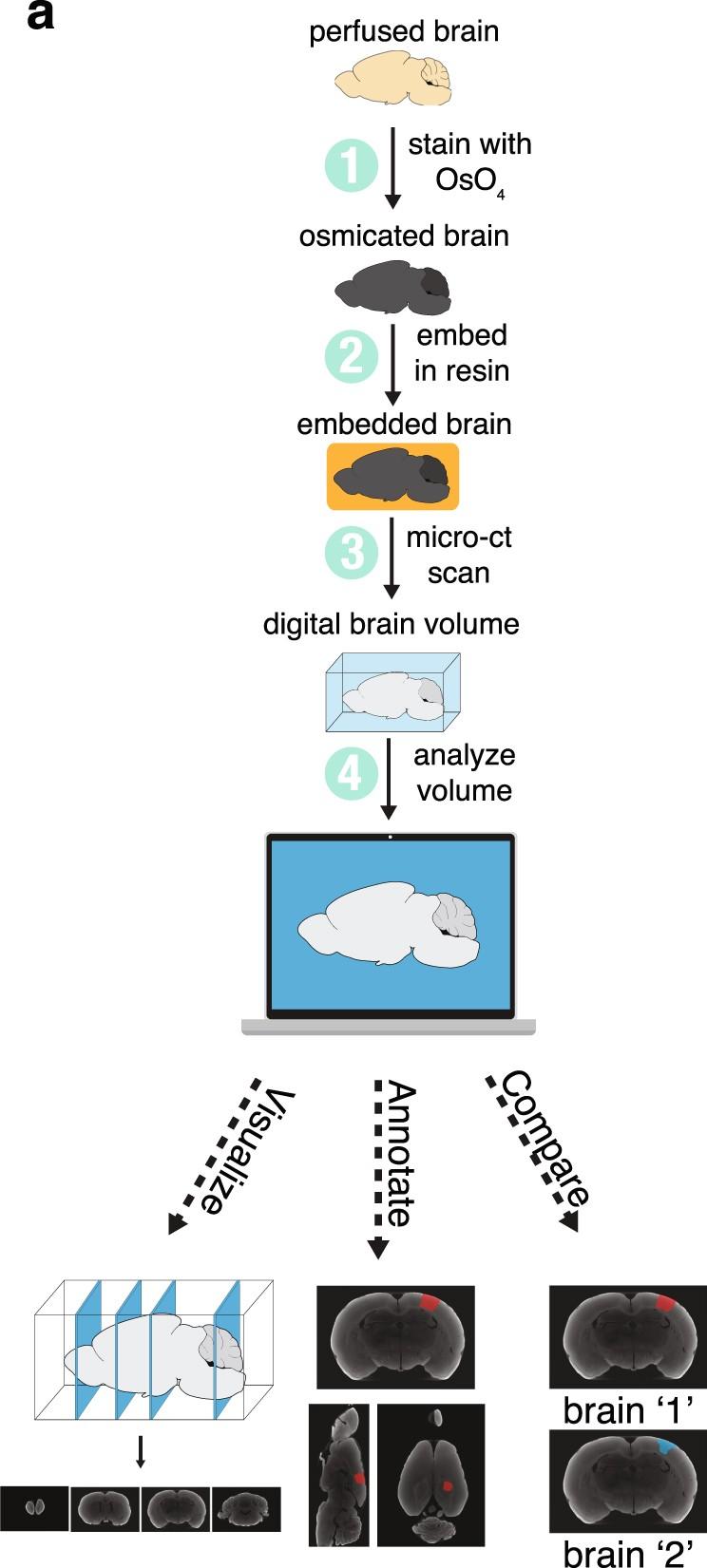 A micro-CT-based method for quantitative brain lesion