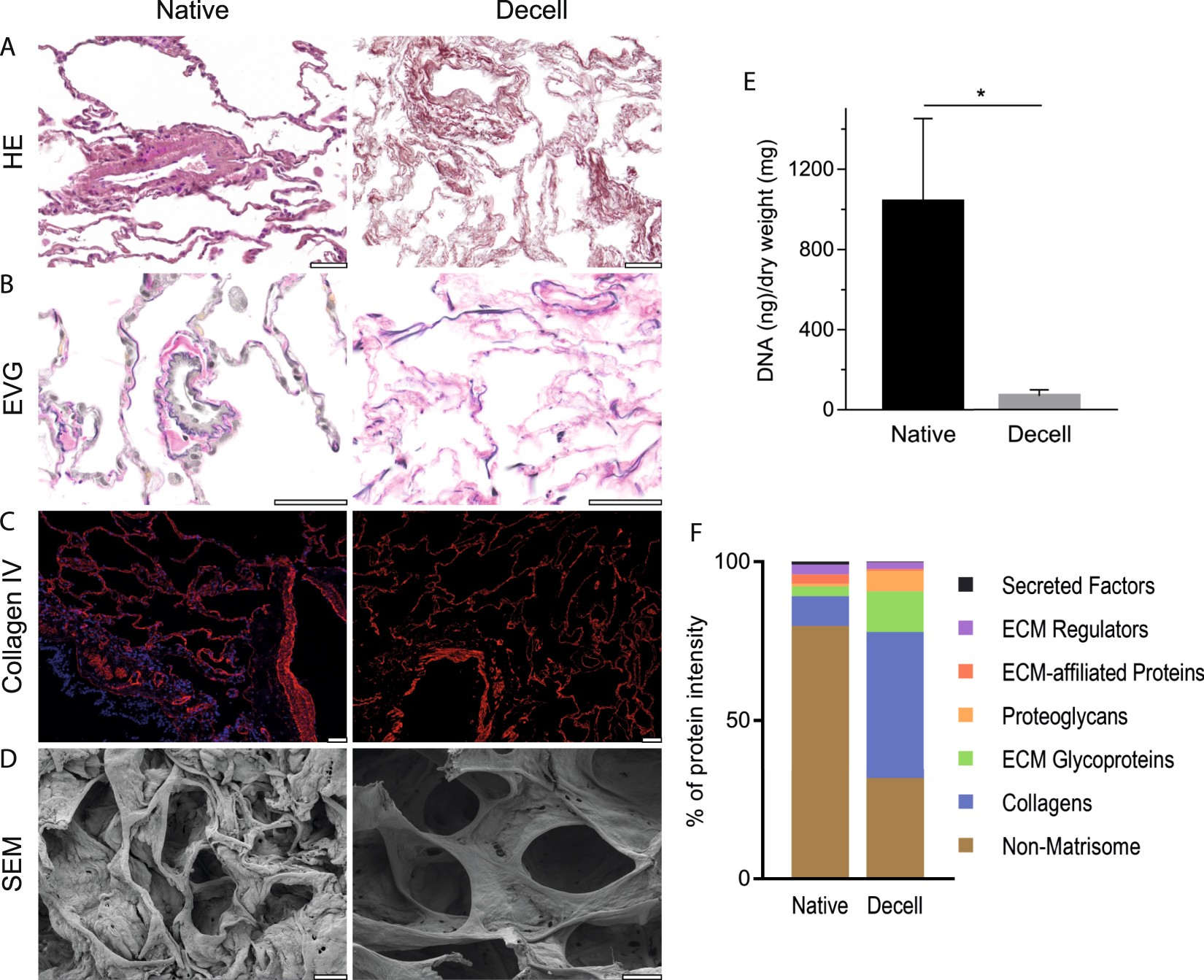 Quantifying Extracellular Matrix Turnover In Human Lung Scaffold 3d Tooth Diagram Additionally Parts Of A Bridge For Teeth Cultures Scientific Reports