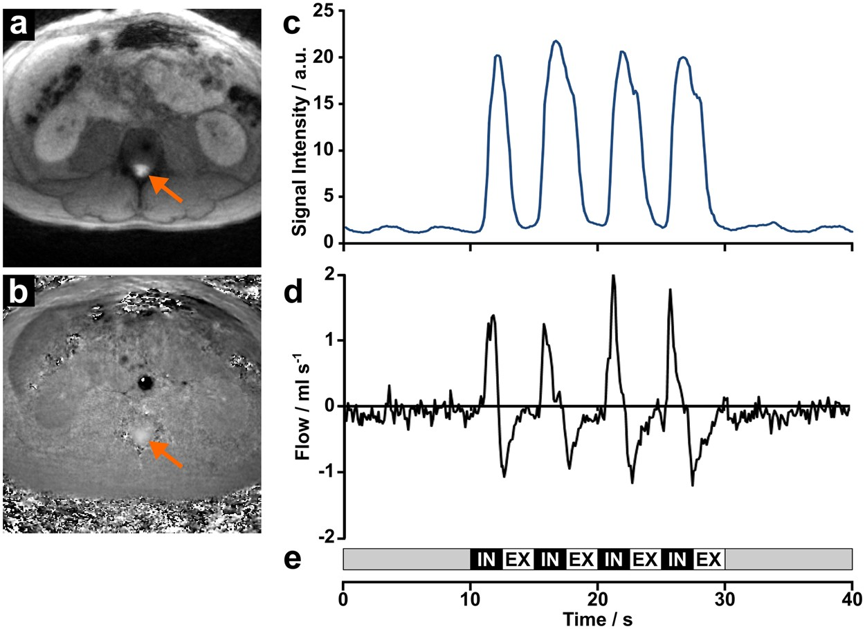 Respiration And The Watershed Of Spinal Csf Flow In Humans