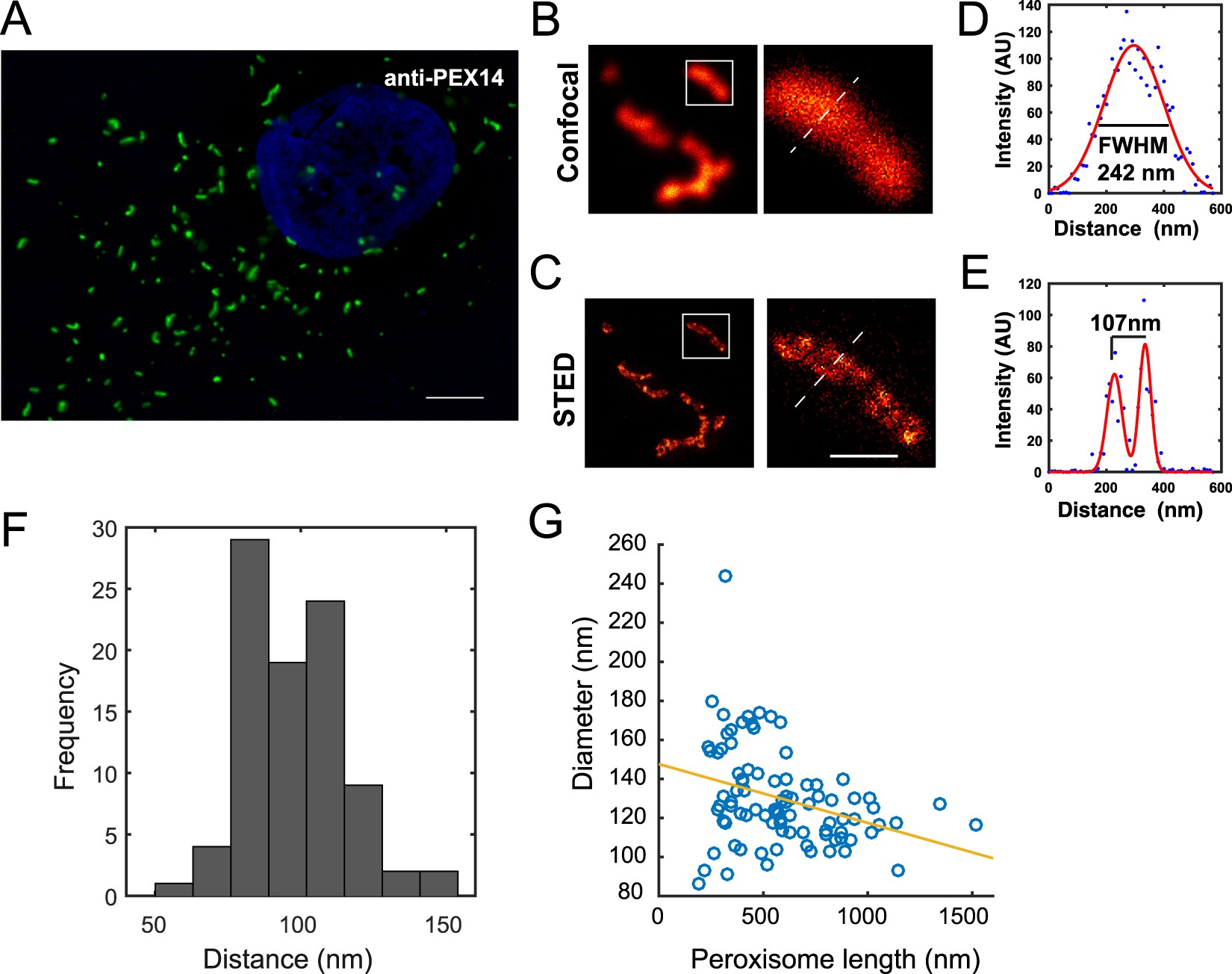 Super Resolution Imaging Reveals The Sub Diffraction Phenotype Of 5 Pen Pc Technology Block Diagram Zellweger Syndrome Ghosts And Wild Type Peroxisomes Scientific Reports