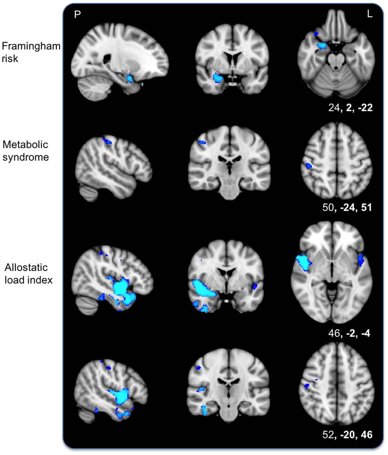 Allostatic load as a predictor of grey matter volume and white