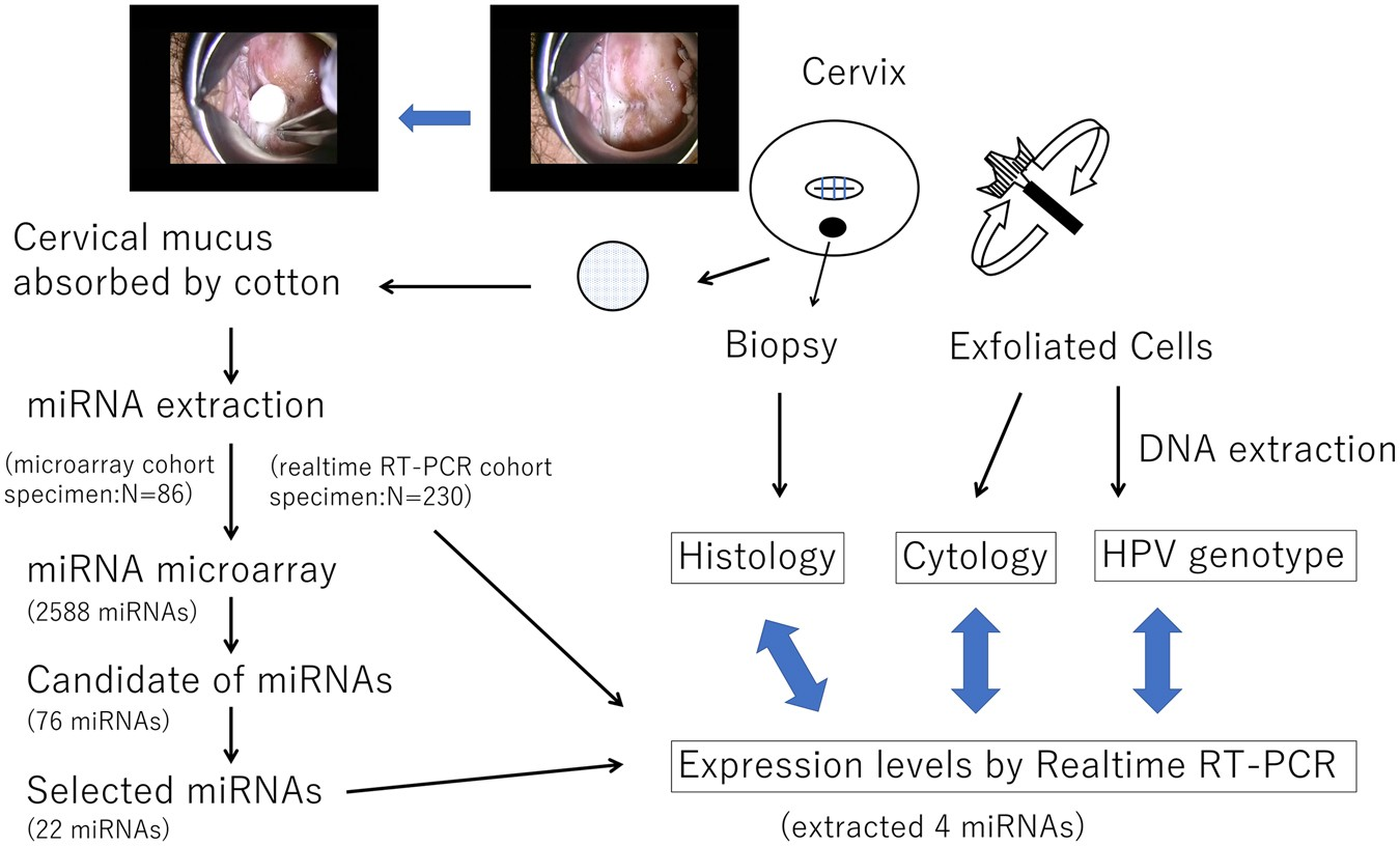 Neoplasms in the cervix: types, diagnosis, removal