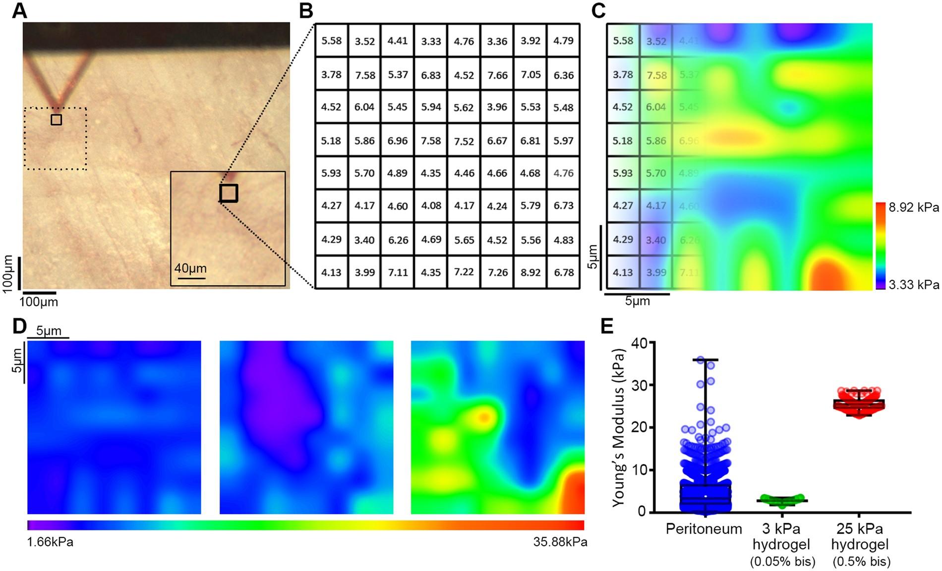 31dfd29566d The mechanical microenvironment regulates ovarian cancer cell morphology