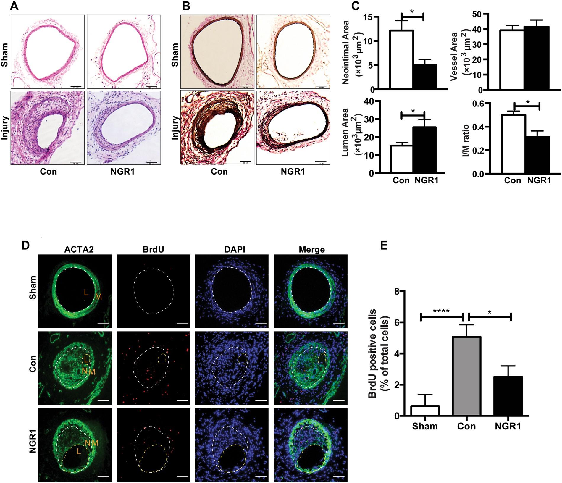 Notoginsenoside R1 Inhibits Vascular Smooth Muscle Cell Jackson Cvr Humbucker Wiring Diagram Proliferation Migration And Neointimal Hyperplasia Through Pi3k Akt Signaling Scientific Reports