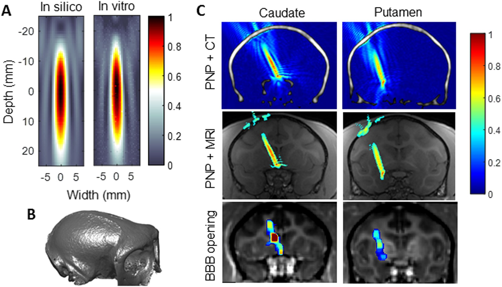 Efficient Blood Brain Barrier Opening In Primates With Alternative To Drugs As Treatments Electrical Energy Pulses Tr Neuronavigation Guided Ultrasound And Real Time Acoustic Mapping Scientific Reports