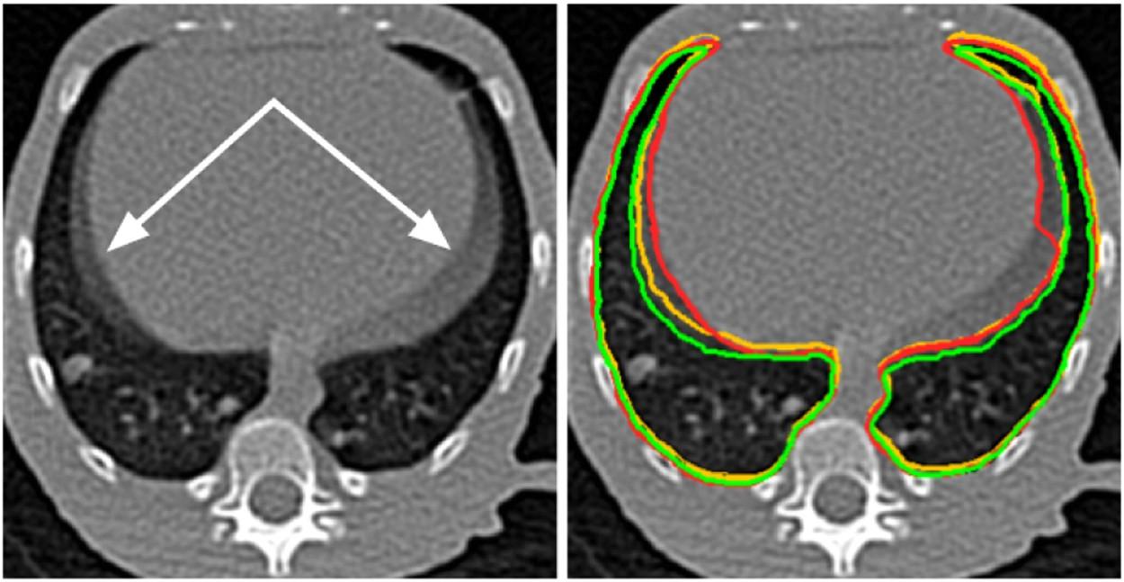 Unsupervised CT Lung Image Segmentation of a Mycobacterium