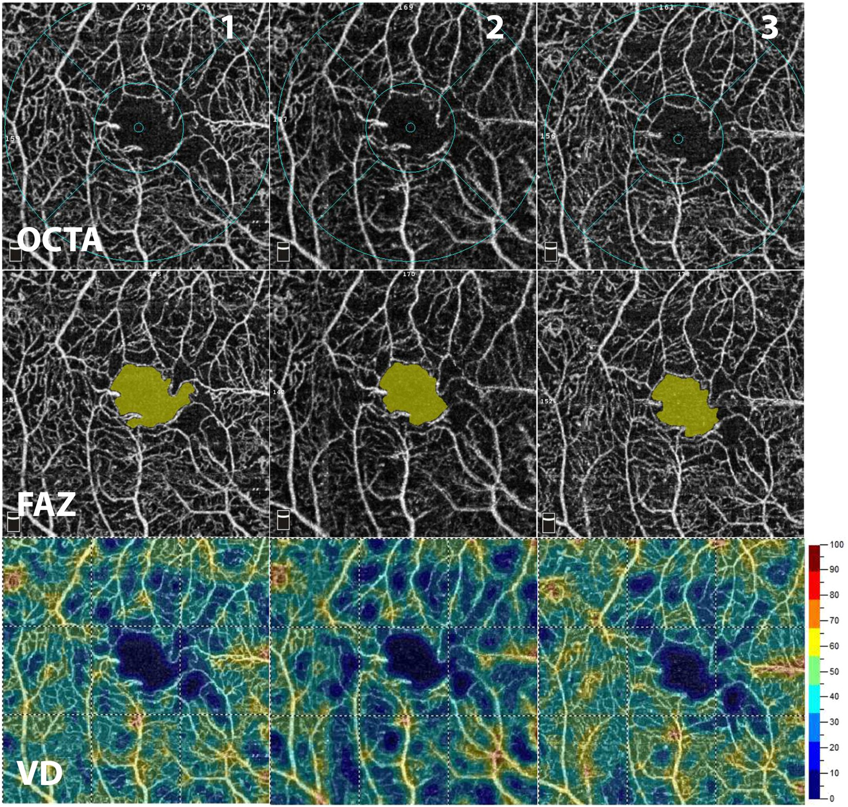 Intrasession And Between Visit Variability Of Retinal Vessel Density