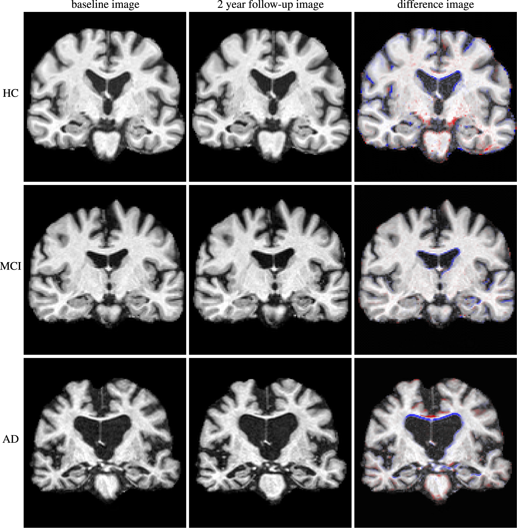 Structural brain imaging in Alzheimer's disease and mild cognitive