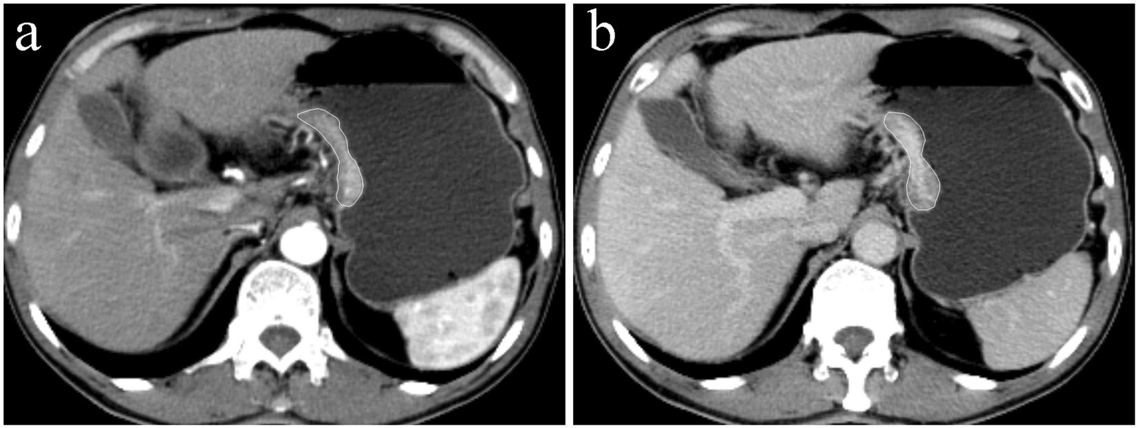 Gastric cancer ct scan, Stomach (Gastric) Cancer Treatment enterobius vermicularis habitat