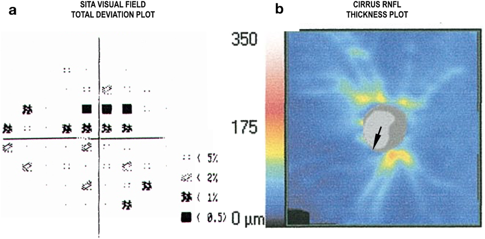 In vivo optic nerve head mechanical response to intraocular and ...