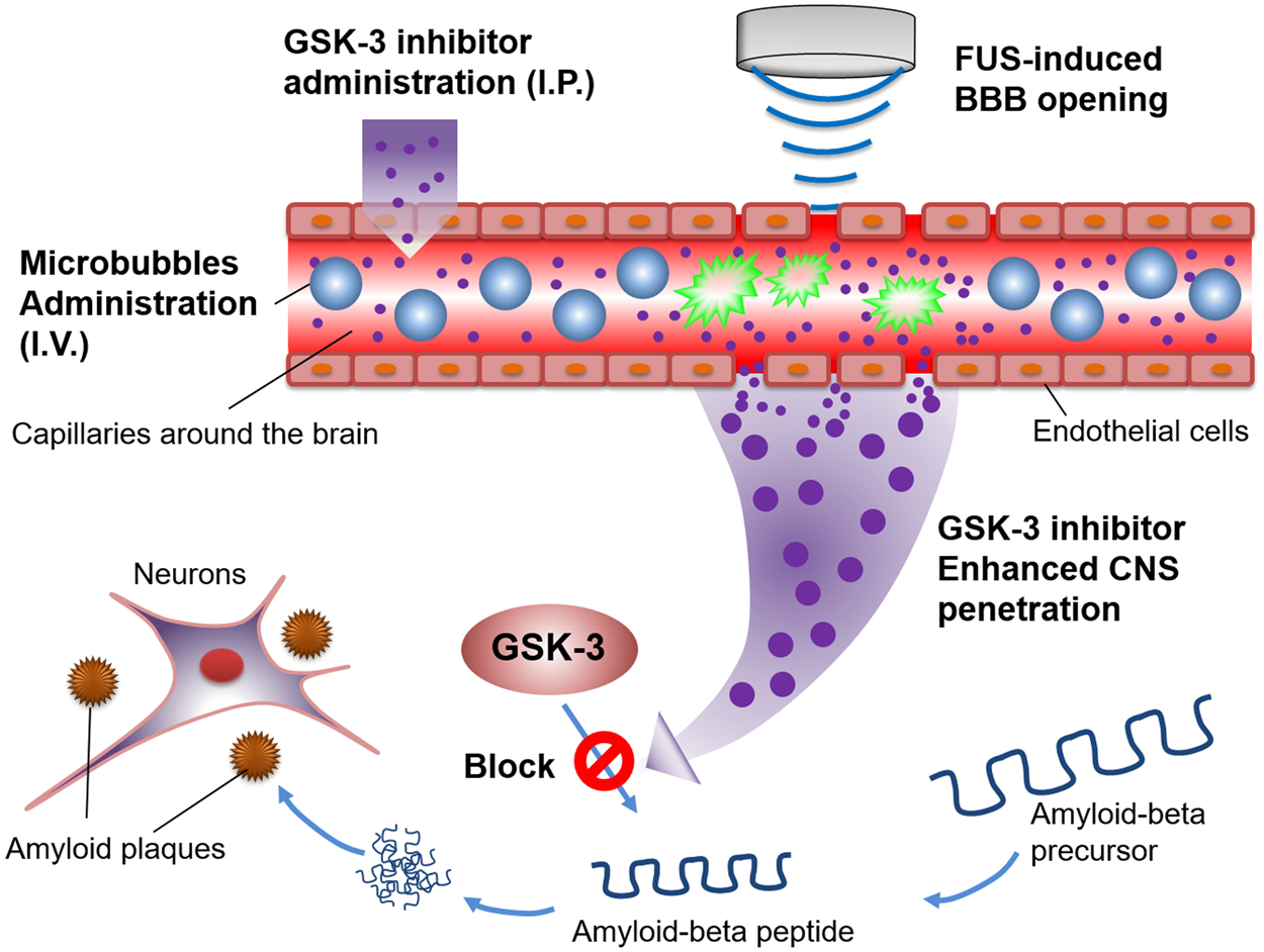 Focused Ultrasound Induced Blood Brain Barrier Opening Enhances Gsk 25 Khz Transducer Electronics And Electrical Engineering 3 Inhibitor Delivery For Amyloid Beta Plaque Reduction Scientific Reports