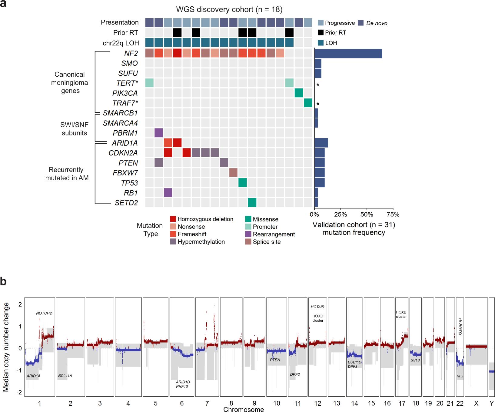 An Integrated Genomic Analysis Of Anaplastic Meningioma