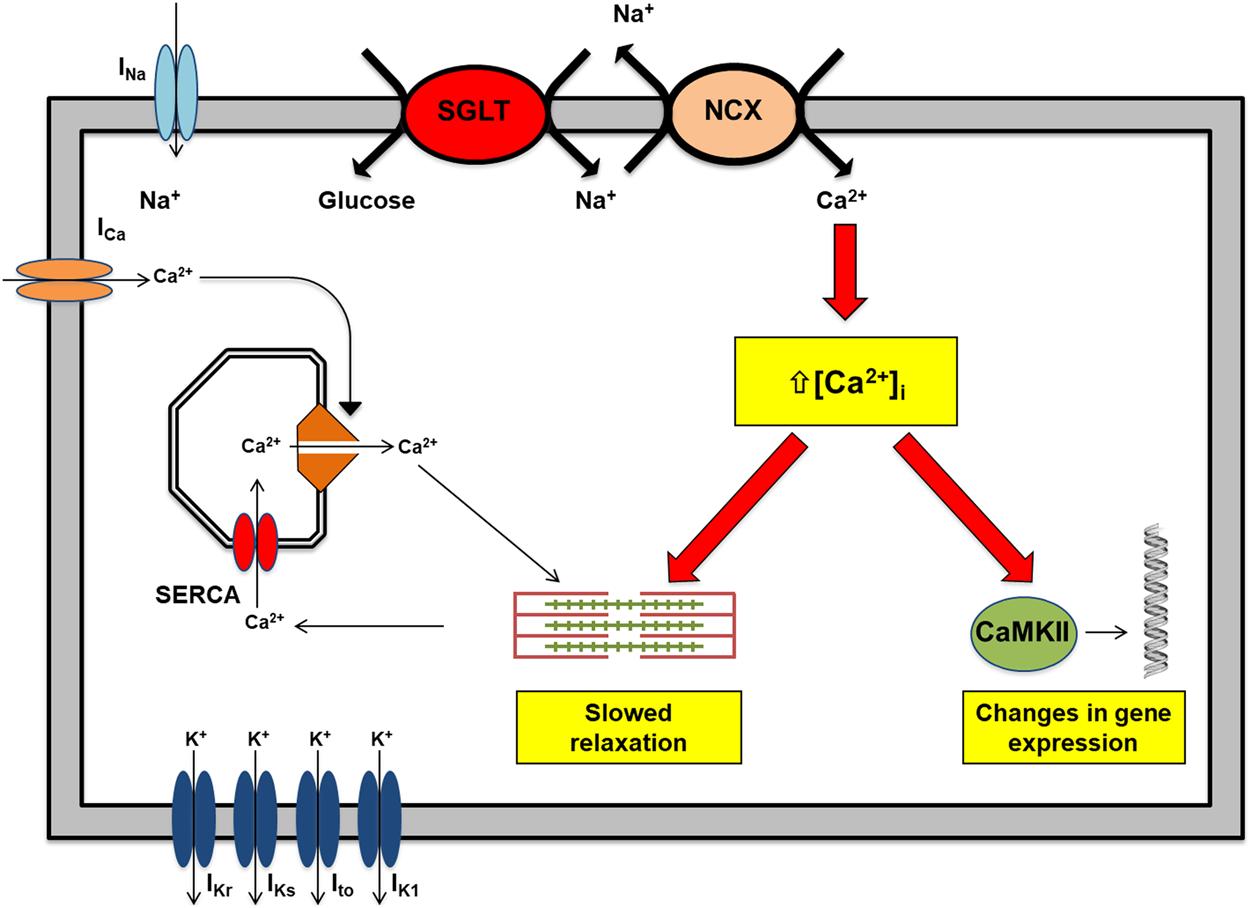 Empagliflozin Ammeliorates High Glucose Induced-Cardiac Dysfuntion