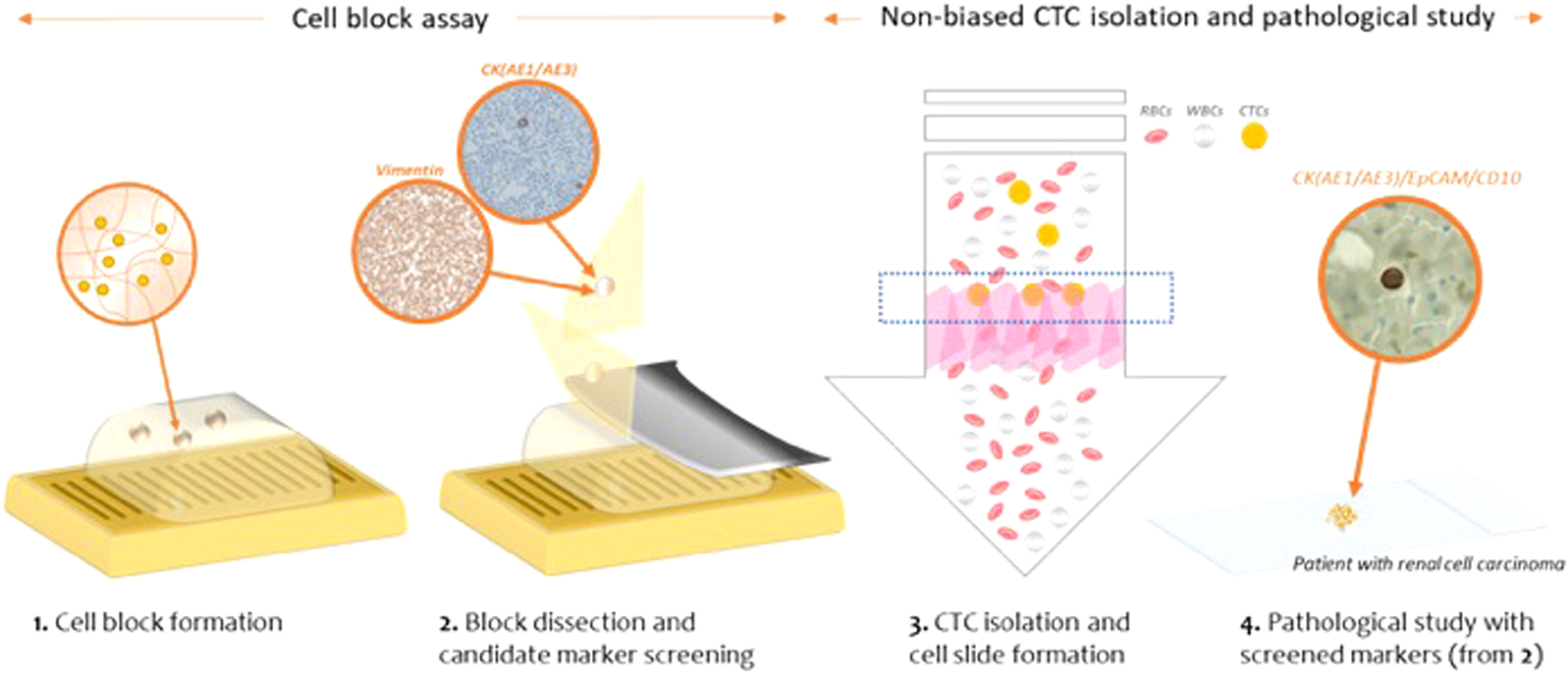 Cytopathological Study Of The Circulating Tumor Cells Filtered From Ory Circuit Diagram Continued Cancer Patients Blood Using Hydrogel Based Cell Block Formation Scientific