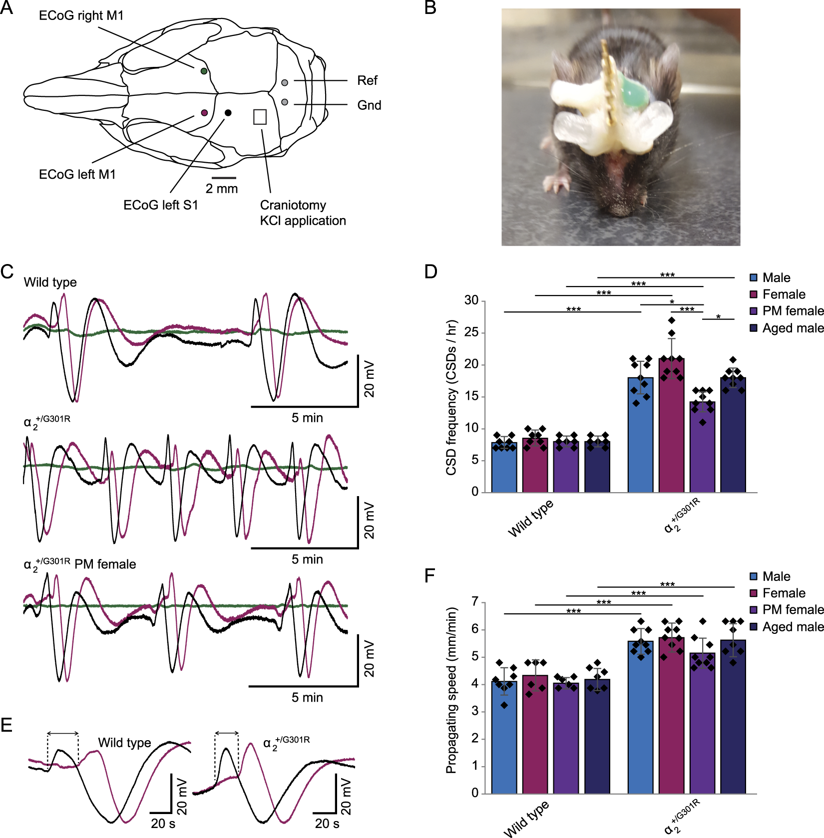 Increased Susceptibility To Cortical Spreading Depression And