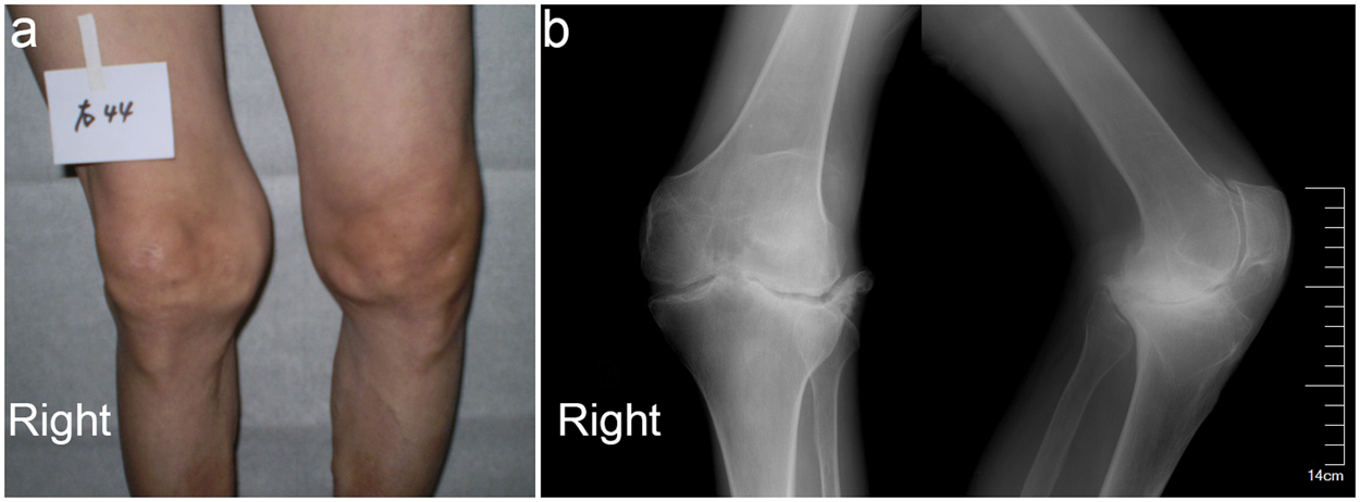 Comparison of bone texture between normal individuals and