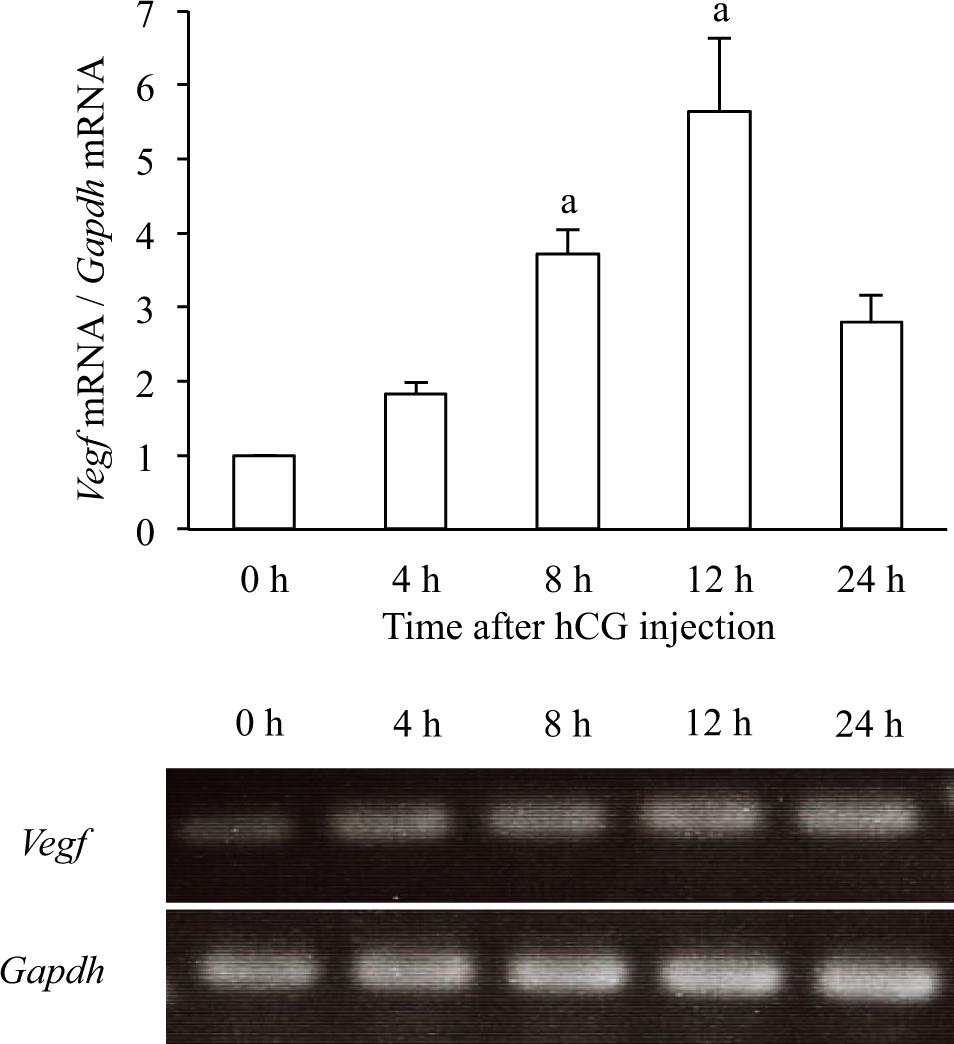 C/EBPβ regulates Vegf gene expression in granulosa cells undergoing