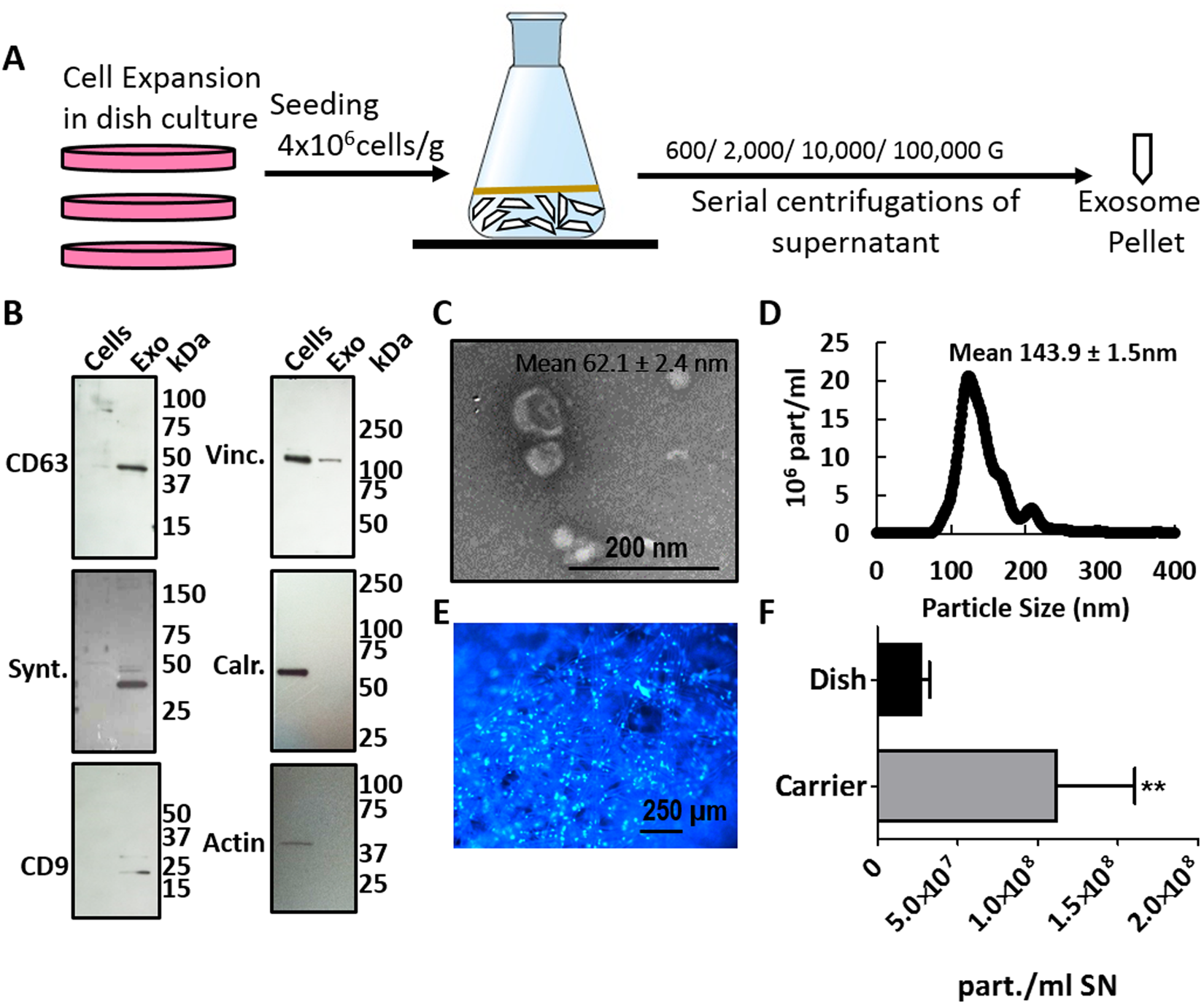 Stem cell exosomes inhibit angiogenesis and tumor growth of