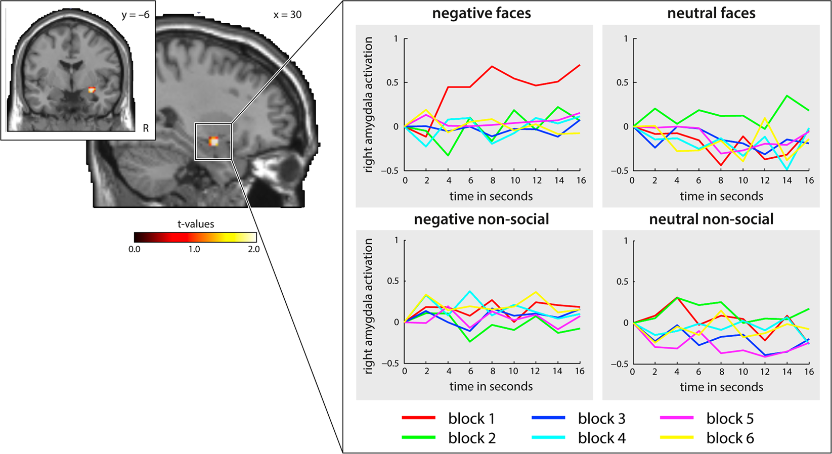 Neural mechanisms of affective matching across faces and scenes ...