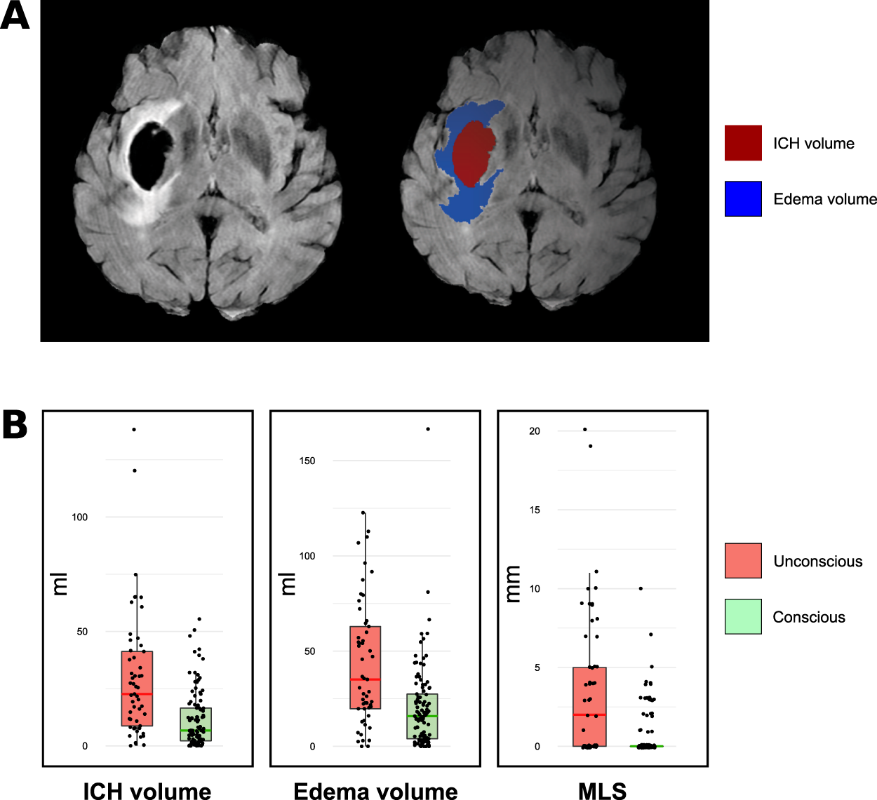 Deep structural brain lesions associated with consciousness