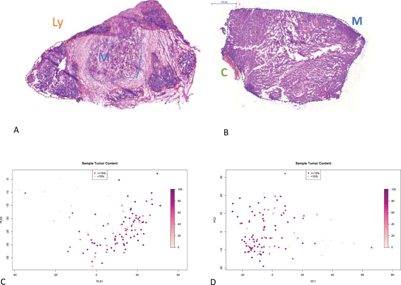 Improved survival prognostication of node-positive malignant
