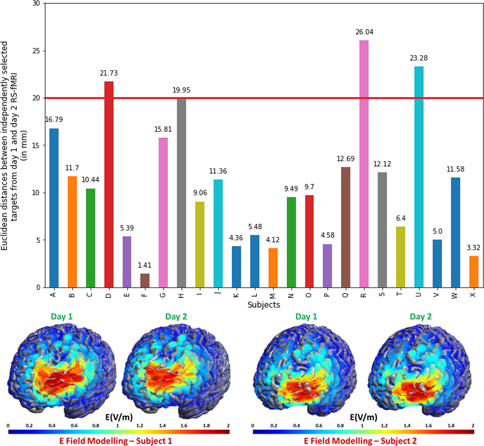 Personalized repetitive transcranial magnetic stimulation