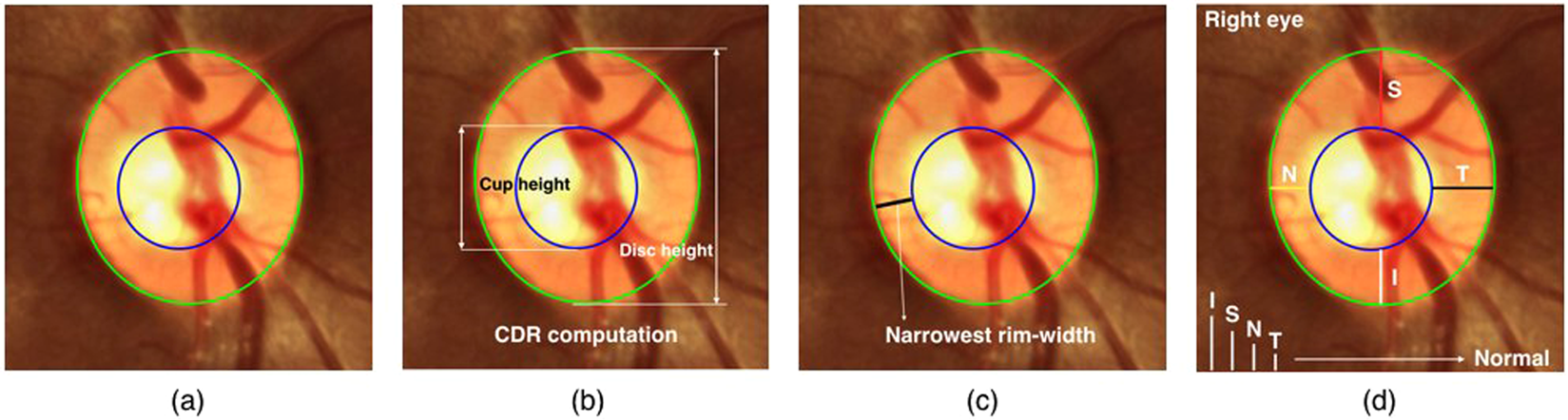 Rim-to-Disc Ratio Outperforms Cup-to-Disc Ratio for Glaucoma