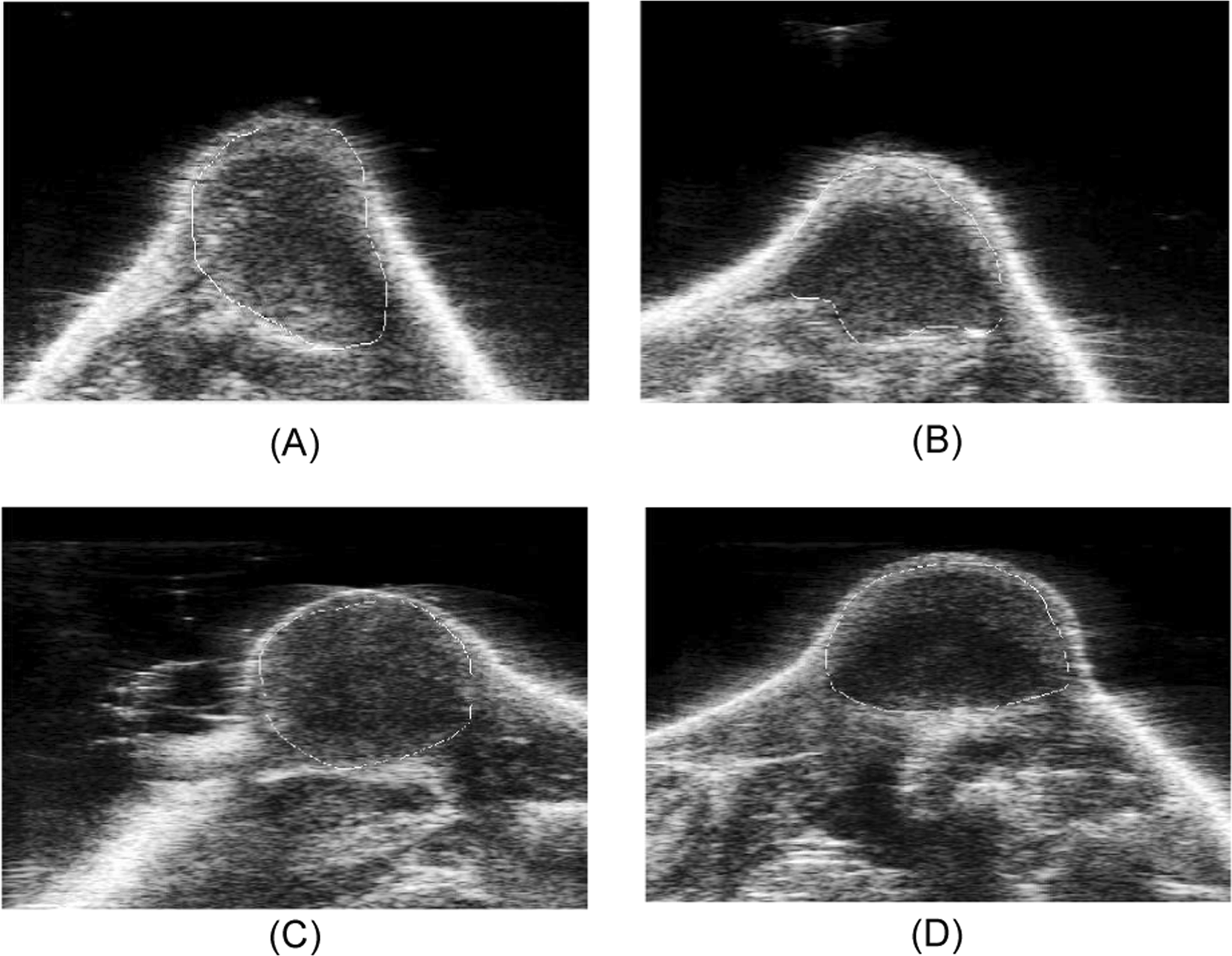 Developing a Quantitative Ultrasound Image Feature Analysis