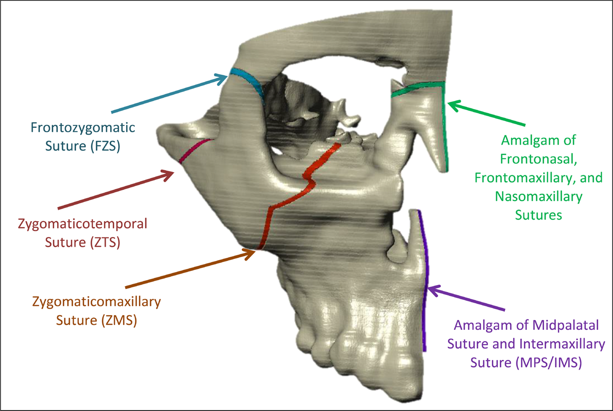 A comparative finite element analysis of maxillary expansion with