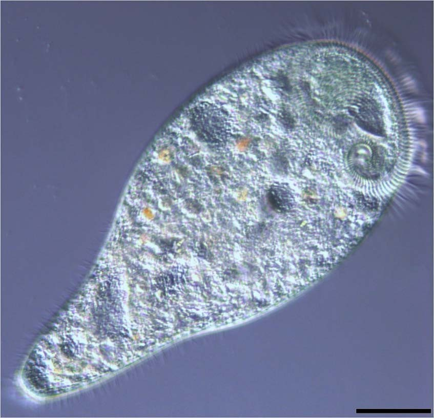 The core microbiome of sessile ciliate Stentor coeruleus is not