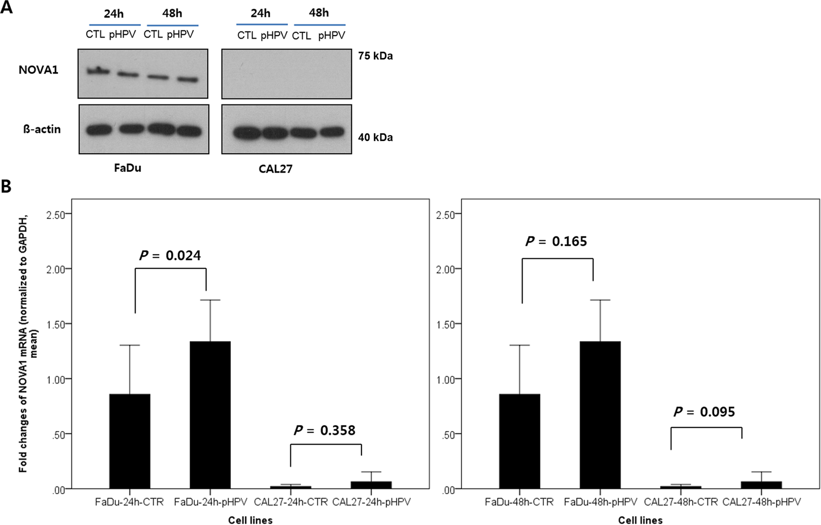 NOVA1 induction by inflammation and NOVA1 suppression by epigenetic
