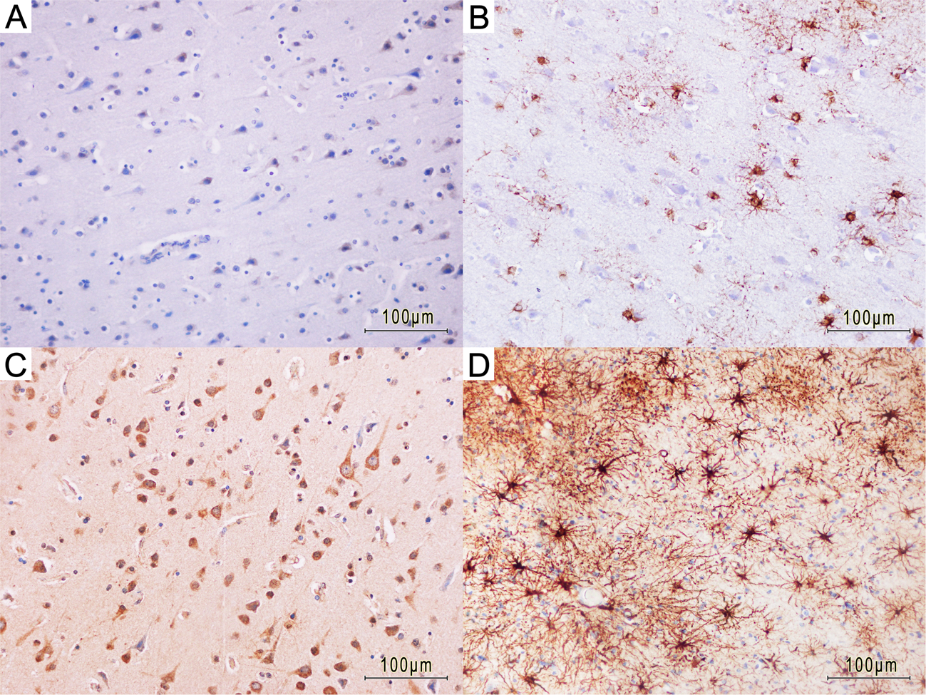 Survival Time Dependent Increase In Neuronal Il 6 And Astroglial
