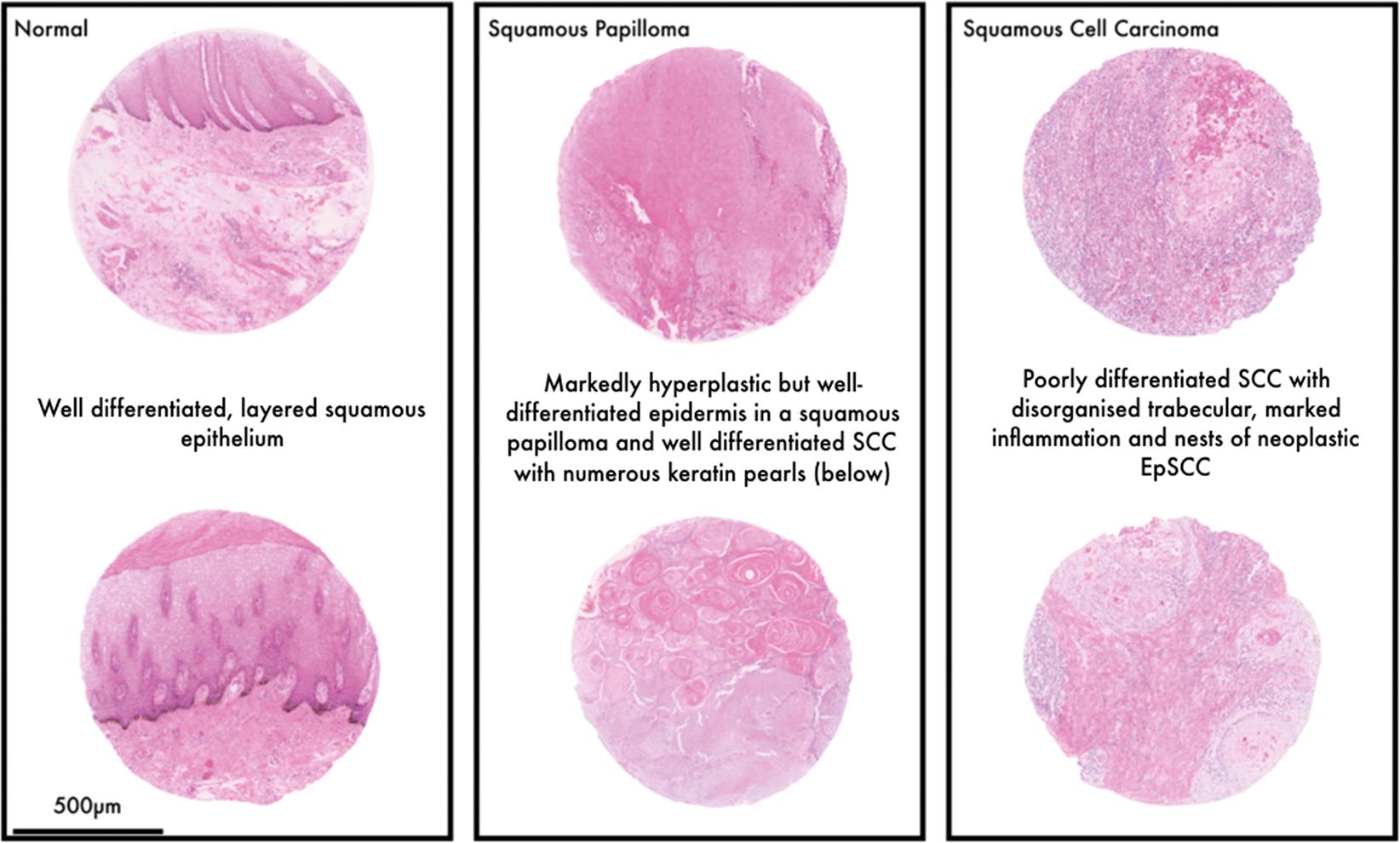 papilloma epithelial tumors)