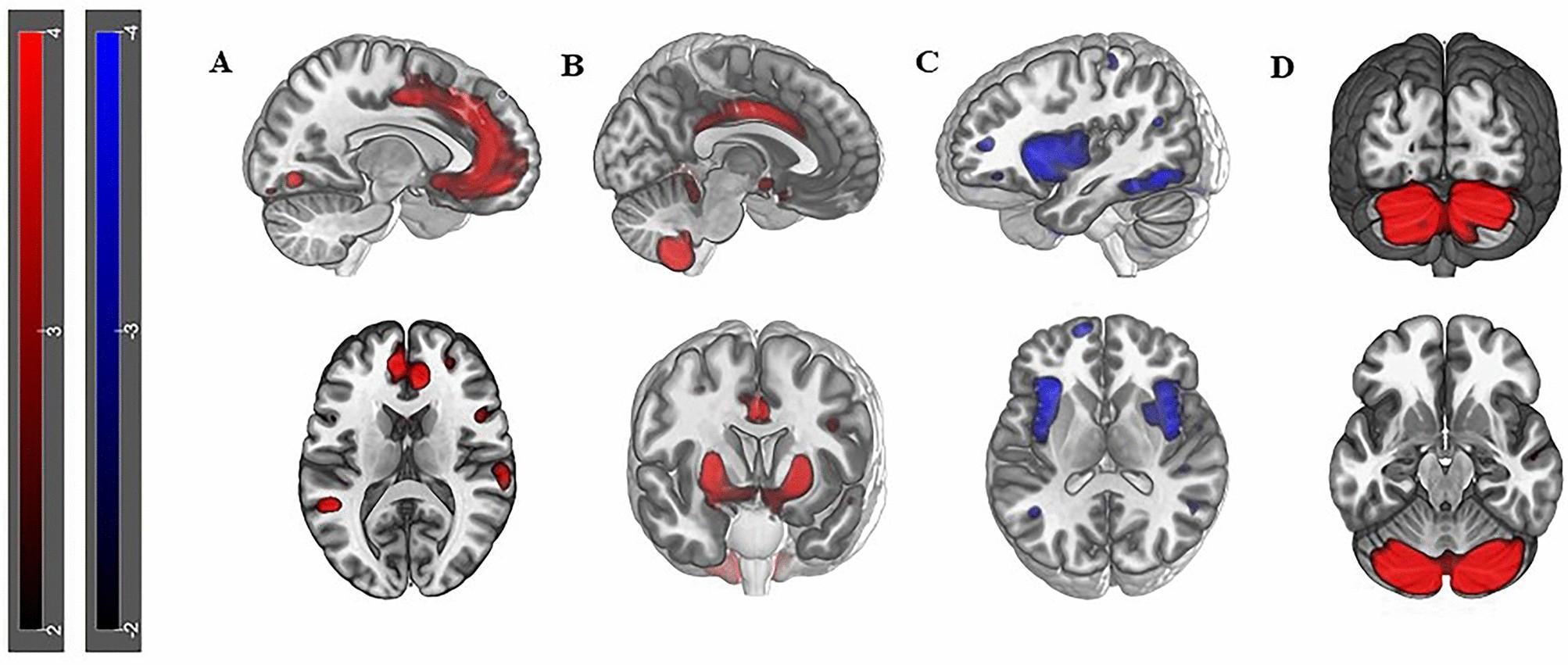 Neurosis és prosztatitis Ha 24 éven belül prostatitis