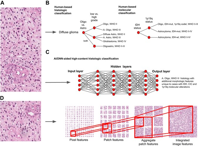 Diagnostic decision-making algorithms in pathology. a Digital image of a  H&E stained slide showing classic histologic features of an anaplastic ...